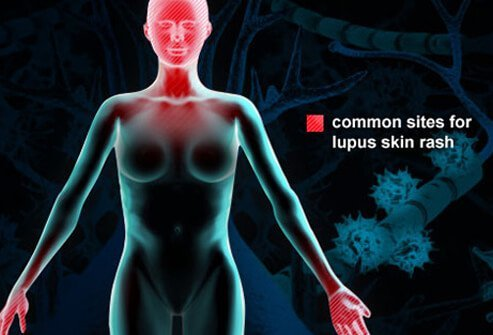 Stress and Lupus Symptoms and Signs