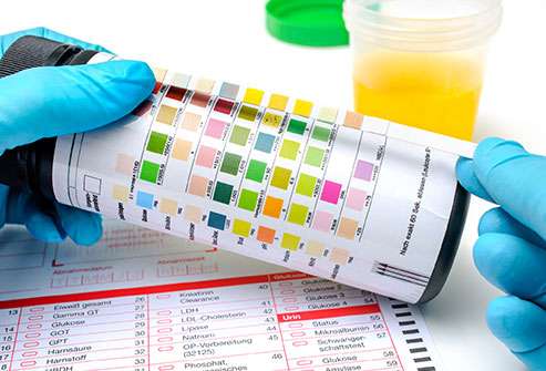 Urine What Your Pee Says About Your Health Slideshow