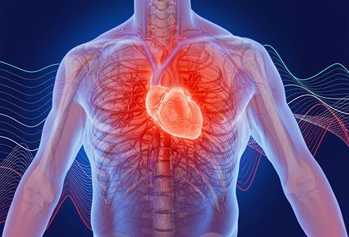 Heart Health What Causes Heart Palpitations? Slideshow