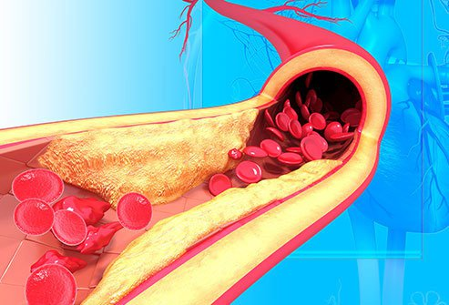 Hypertension What High Blood Pressure Can Do to Your Body Slideshow