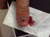 The same thumb after it has been drained. Notice the hole in the nail and the blood draining from the hole. The large dark area beneath the nail (the hematoma) is practically gone.