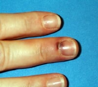 An example of a nail with a subungual hematoma that occupies less than 25% of the nail area. This hematoma did not require drainage.