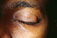 Chalazion. Photo courtesy of Larry Stack, MD.