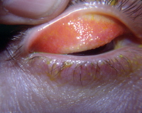 Giant papillary conjunctivitis, or bumps under the eyelid, caused by a contact lens. Courtesy Frank J. Weinstock, MD, FACS.