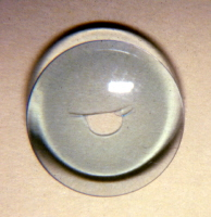 A hole in a soft contact lens. Courtesy Frank J. Weinstock, MD, FACS.