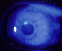 This corneal abrasion appears as a yellow-green area when stained with fluorescein and viewed with a blue light.