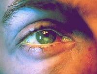 Picture of a corneal ulcer
