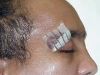 Close-up of adhesive strips used to close the wound to the eyebrow.