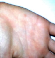A common wart shows up as a pink circle toward the top of the hand.