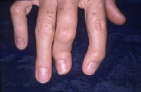 Psoriatic arthritis. Severe deformity of the joints at the ends of the fingers.
