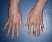 Psoriatic arthritis involving the fingers.