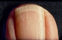 Nail psoriasis. Note the classic pits and yellowish color in the nails.