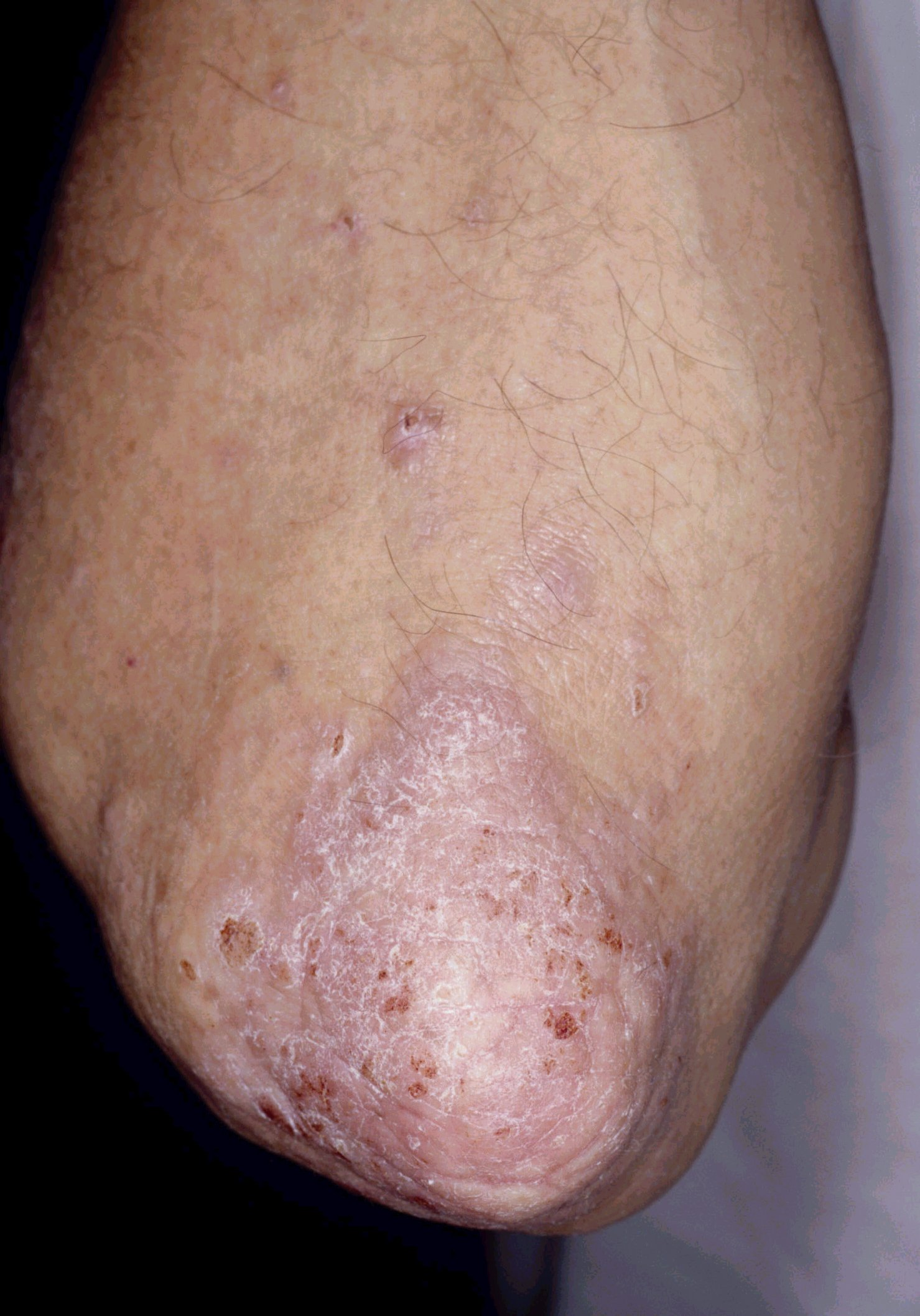 Plaque psoriasis on the elbow. Image courtesy of Hon Pak, MD.