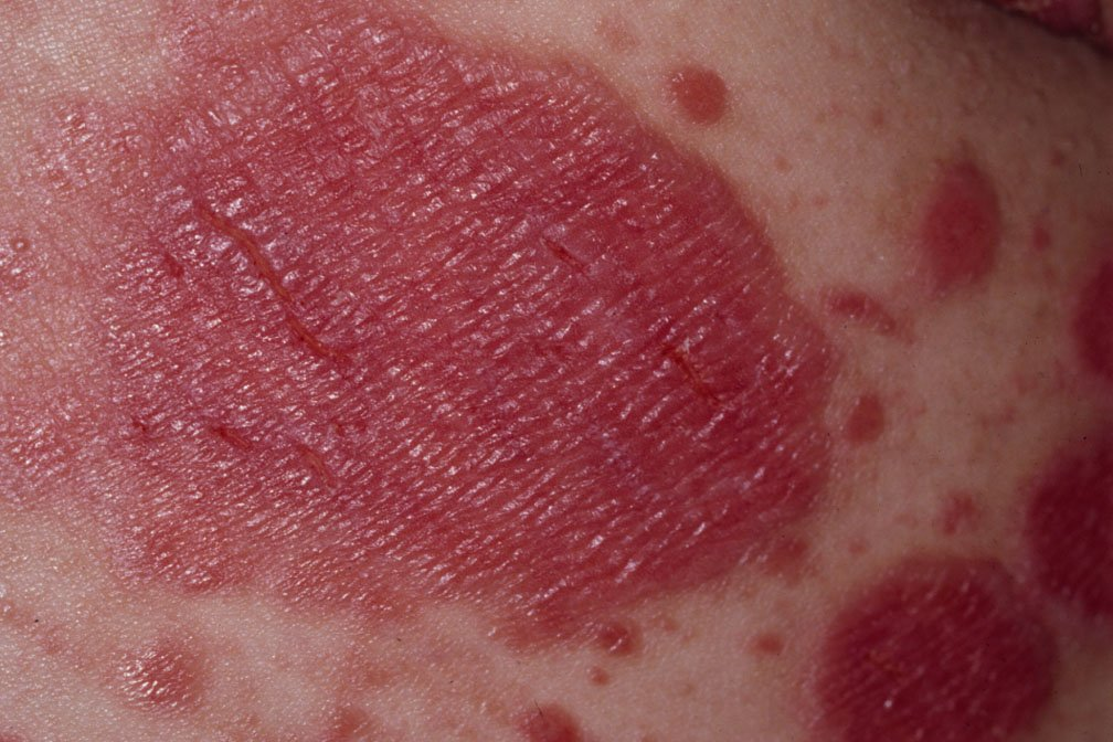 Plaque psoriasis with fissures, which are splits in the skin. Fissures usually occur where the skin bends (joints). The skin may bleed and is more susceptible to infection. Image courtesy of Hon Pak, MD.
