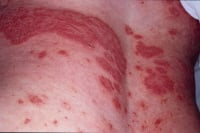 Plaque psoriasis on the back.