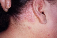 Picture of psoriasis of the scalp.