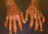 Picture of severe psoriatic arthritis involving the finger joints.