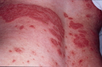 Picture of plaque psoriasis on the back.