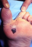 Skin cancer. Melanoma on the sole of the foot. Diagnostic punch biopsy site located at the top. Photo courtesy of Susan M. Swetter, MD, Director of Pigmented Lesion and Cutaneous Melanoma Clinic, Assistant Professor, Department of Dermatology, Stanford University Medical Center, Veterans Affairs Palo Alto Health Care System..