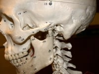Temporomandibular joint (TMJ) syndrome. The mandible (jawbone) and its placement to the skull at the TMJ.