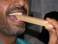Temporomandibular joint (TMJ) syndrome. Physical therapy with tongue depressors.