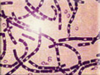 Microscopic picture of anthrax. Image courtesy of AVIP agency, Office of the Army Surgeon General, U.S.