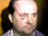 Skin lesion of anthrax on face. Picture courtesy of the Public Health Image Library, CDC, Atlanta, Georgia.