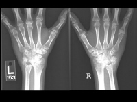 Media file 3: Wrist X-rays of active polyarticular arthritis (same person as Image 2). X-ray shows severe loss of cartilage, bone erosion, and joint fixation and narrowing.