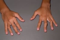 Media file 5: Inactive polyarticular arthritis. Long-term symptoms of polyarticular disease include partial joint dislocation (subluxation) of both wrists and thumbs, joint contractures, boney overgrowth, and finger deformities (for example, swan-neck or boutonniere deformities).