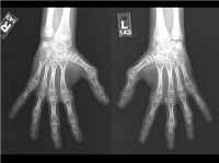 Media file 6: Hand and wrist X-rays of inactive polyarticular arthritis (same person shown in Image 5). Long-term symptoms of polyarticular disease include decreased bone density around joints, bone fusion, accelerated bone age, narrowed joint spaces, boutonniere deformities (at left third and fourth interphalangeal joints), and partial dislocation (subluxation) of joints.