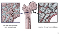 The image on the left shows decreased bone density in osteoporosis. The image on the right shows normal bone density.