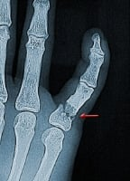 Broken finger. X-ray of a severe fracture of the proximal phalanx of the small finger. This bone is broken in many small fragments and very unstable. This injury occurred in an automobile accident, but injuries like this also can be seen in any traumatic incident. Because it was unstable, surgery was needed. In this type of injury, the surgeon may use either pins or plates and screws for repair. The pins would stay in for about 4-6 weeks, and plates and screws would be removed only if bothersome.