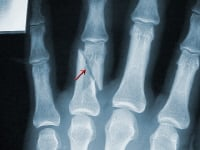 Broken finger. This X-ray shows an oblique (diagonal) fracture through the proximal phalanx of the ring finger. Notice how the fracture tends to slip or shorten (arrow). Not only does this fracture shorten, but rotational deformities are also seen. Usually it is not stable enough for just buddy taping, and surgery may be needed.