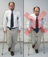 Broken foot. Proper  use of crutches is shown on the left. Crutch tips are shoulder width apart.  Elbows are straight and locked. Pads at the top of the crutches are 3  fingerbreadths below the armpit and press against the side of the chest. Incorrect use of crutches is shown on the right.