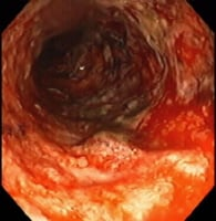 Media file 4: Severe colitis - colonoscopy. The mucosa is grossly denuded, with active bleeding noted. This patient had her colon resected very shortly after this view was obtained.