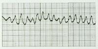 This is a heart tracing (ECG) of a person experiencing ventricular fibrillation. Ventricular fibrillation is the most common ECG finding when an adult suffers cardiac arrest.
