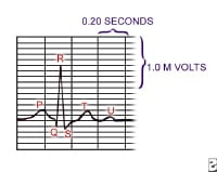 Picture of basic P-QRS-T wave sequence.