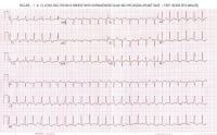 Picture of an ECG from a patient with PSVT.