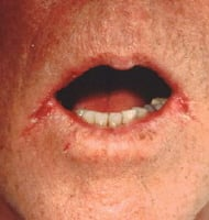 Soreness and cracks at the sides of the mouth is a frequent expression of candidal infection in the elderly. (Images courtesy of Matthew C. Lambiase, DO).