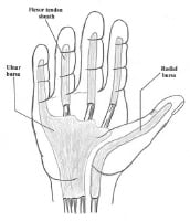Picture of flexor tendon sheaths and radial and ulnar bursae. Image courtesy of Randle L Likes, DO.