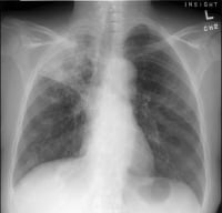 A 48-year-old foreign-born woman developed cough, sputum production, and blood-tinged sputum. Sputum staining showed tubercle bacilli. Her chest X-ray showed a cavity-like lesion in right upper lobe of her lung.