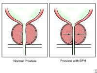 Normal prostate and enlarged prostate (prostate with benign prostatic hyperplasia [BPH]