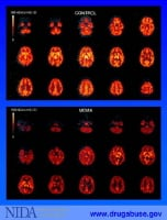 MDMA (ecstasy) and brain changes.  This image shows the brain scans of a person who has never used MDMA (top) compared with scans of a person who used MDMA for an extended period of time up until three weeks before the images were taken.  Specifically, the scans show the brain's ability to transport a  neurotransmitter called serotonin from the synapse back into the releasing neuron (the brighter colors). Serotonin is fundamental to the brain's ability to handle information and express emotion.  Such findings are leading researchers to conclude that an ecstasy user may be at risk of long-term, perhaps permanent, problems with learning and memory.  Image courtesy of the National Institute of Drug Abuse (NIDA).