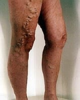 Varicose veins. Photo provided by veinclinics.com.