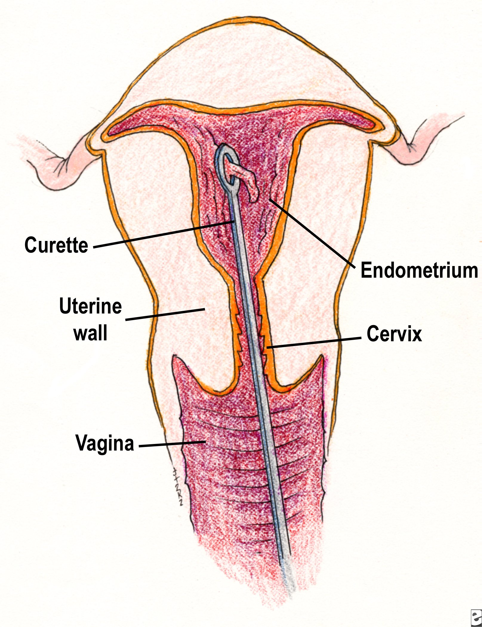 Curettage showing the instrument inserted into the uterus.