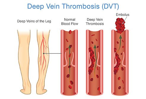 Causes of DVT