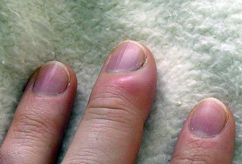 What Are Symptoms and Signs of a Finger Infection?