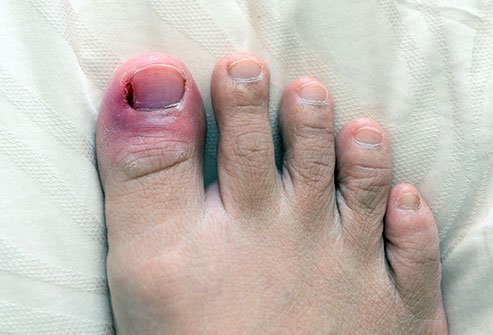 What Are Nail Infection (Paronychia) Symptoms and Signs?