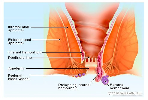 9 Common Causes of Rectal Pain