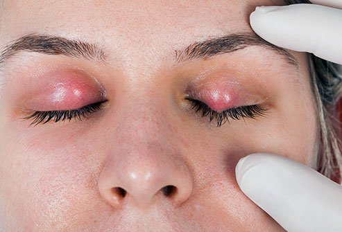What Are Symptoms and Signs of a Stye?